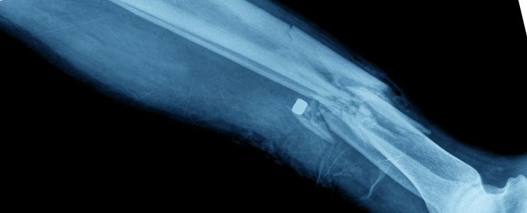 Broken Fibula.