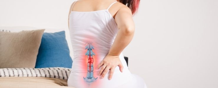 Woman With Sciatica and Lower Back Pain.
